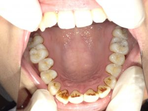 着色状態になっている歯