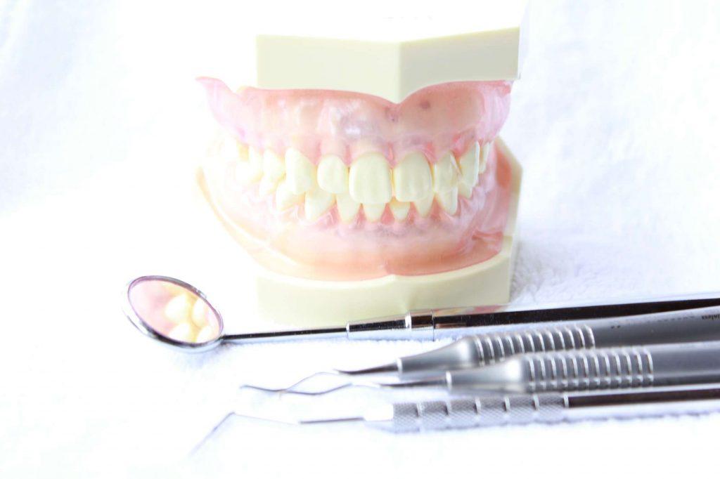 虫歯予防ホワイトニング