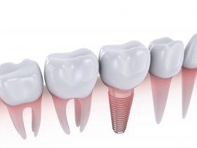 前歯のインプラントの色の選び方のコツ