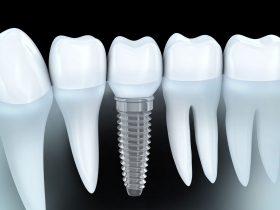 前歯のインプラントの難易度・成功率とは?