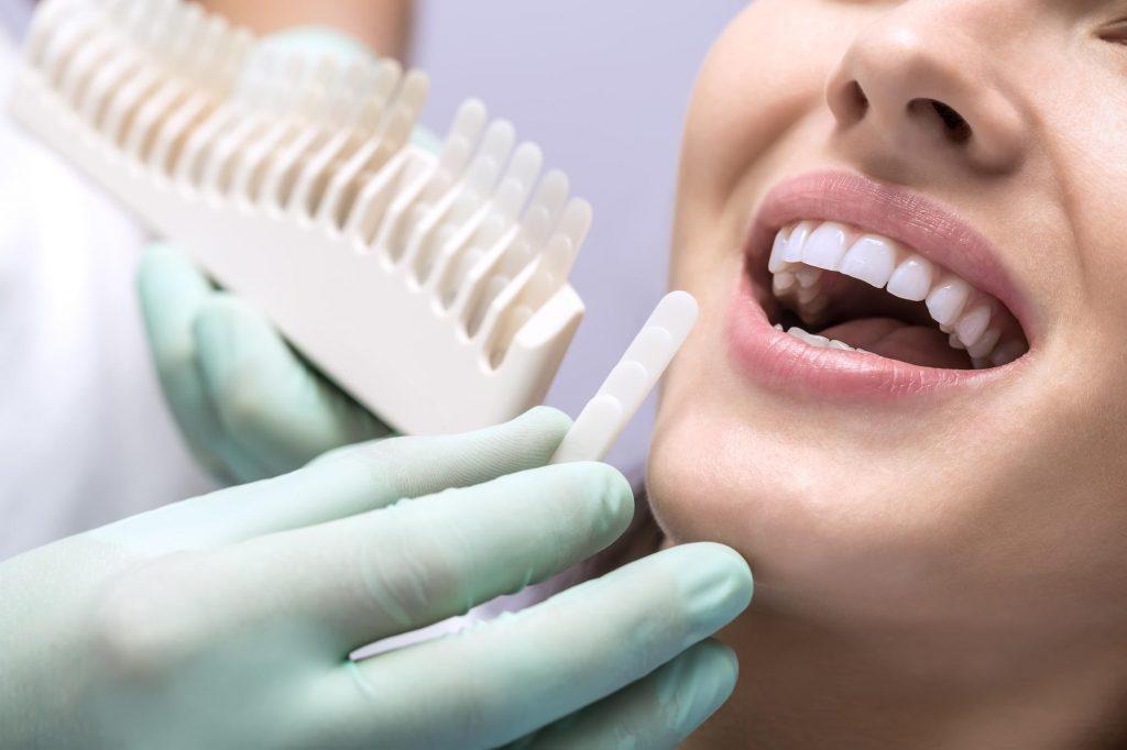 歯医者で受けられるホワイトニングの種類とその効果とは?