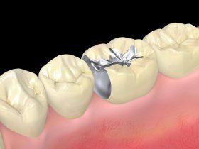 銀歯の下や中、詰め物の下を虫歯にしない予防方法とは?