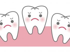 マウスピース矯正は出っ歯やすきっ歯(すきっぱ)にも効果があるの?