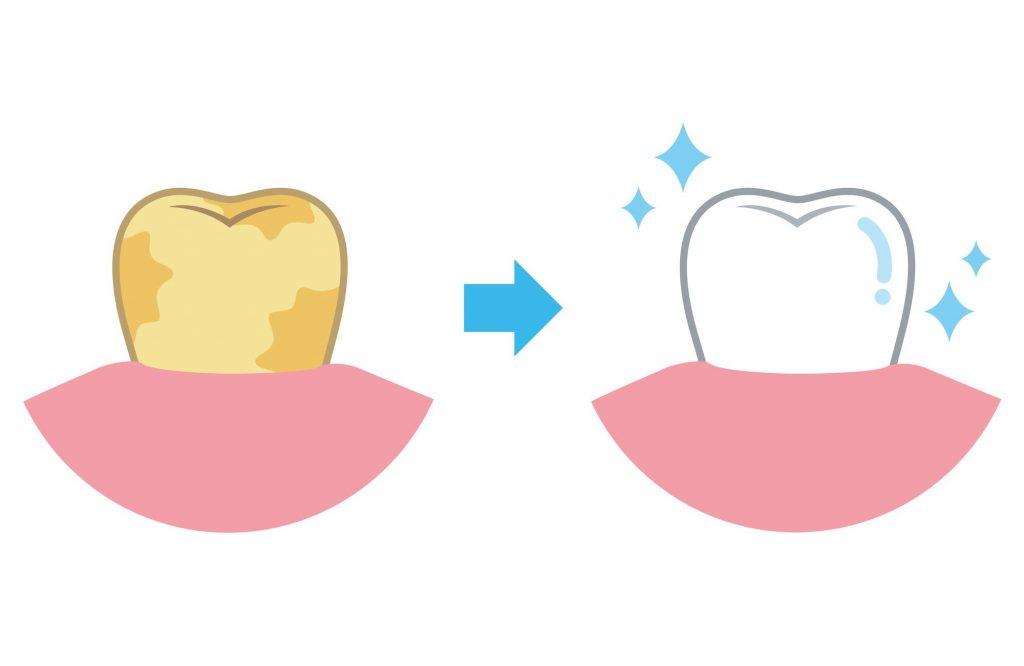 差し歯の黄ばみ(変色)は、ホワイトニングできる?