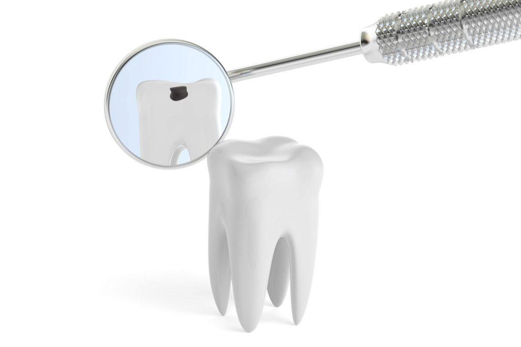 親知らずの虫歯。放置したら歯はボロボロになる?!