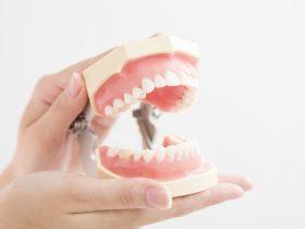 顎関節症治療で使うマウスピースの洗浄・手入れ方法