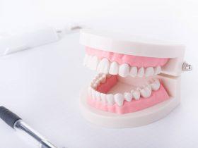 インプラントとオールセラミッククラウンの違いとは?前歯はどちらを選択したらいい?