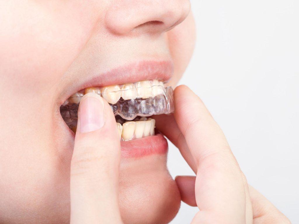 マウスピース矯正ができない歯並びってあるの?